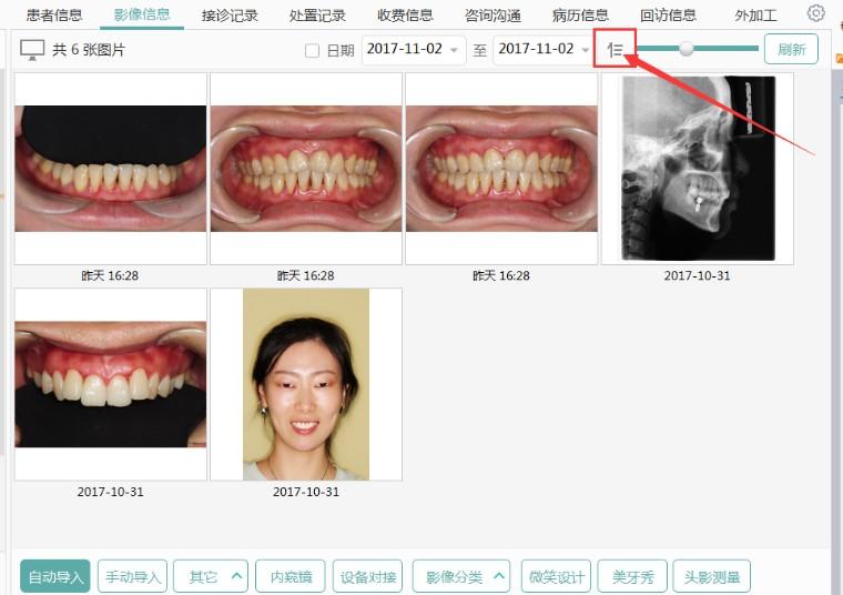 影像排序新增按检查时间升序、降序排列功能