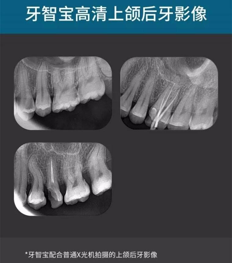 牙智宝影像
