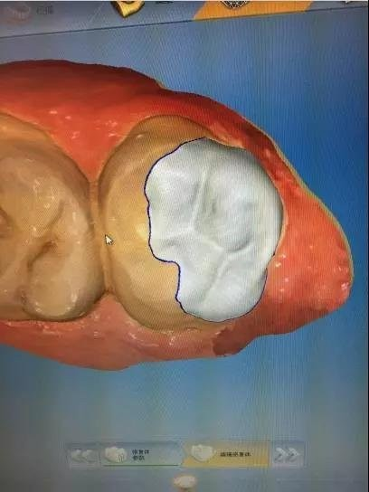 修复体口内照片