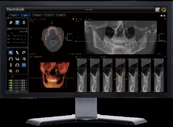 菲森CBCT专业影像诊断软件