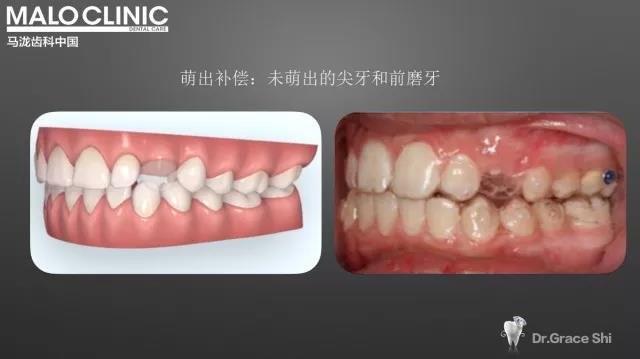 萌出补偿,未萌出的尖牙和前磨牙