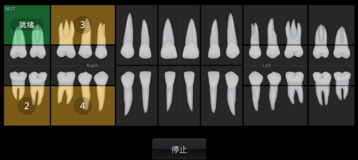 牙医管家口腔管理软件牙位图中智能选择牙位