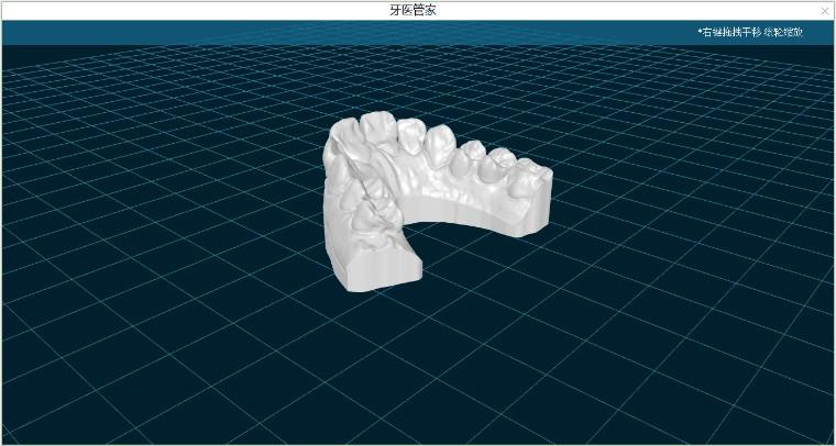 新增口腔三维文件、视频文件的导入