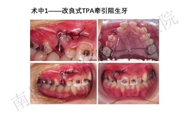 改良式TPA牵引阻生牙课程海报