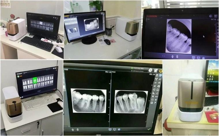 入驻全国各地诊所的牙智宝
