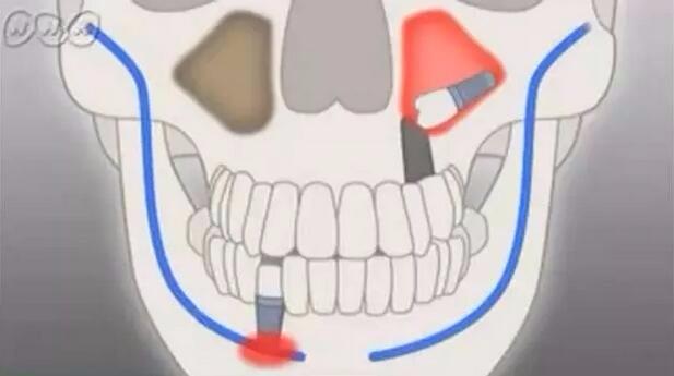 齿科种植牙效果图