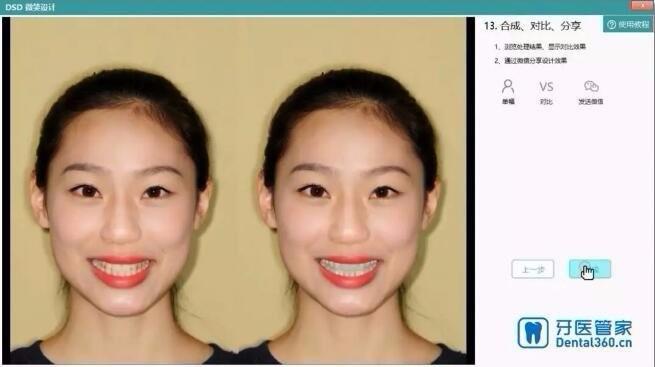 牙医管家牙科软件DSD功能