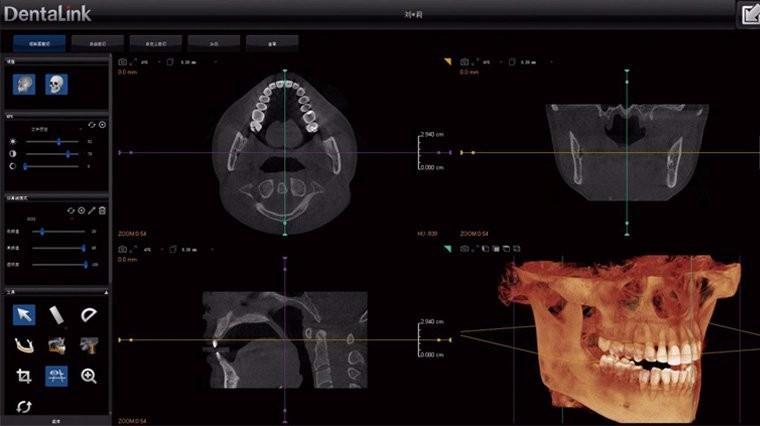 牙医管家CBCT软件界面
