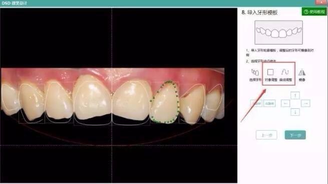 牙医管家DSD模型