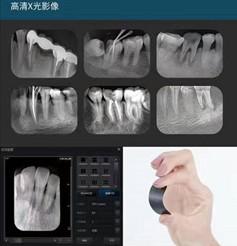 牙智宝拍摄的X光片