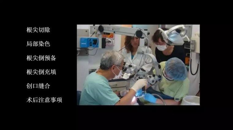 显微根尖手术流程及术后注意事项