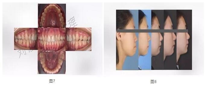 牙齿矫正后效果对照
