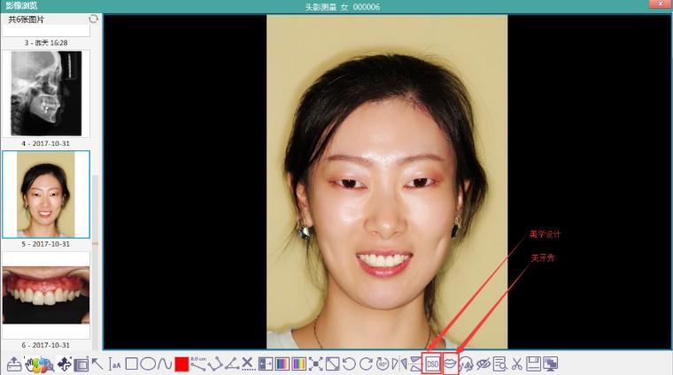 影像浏览新增微笑设计和美学秀功能