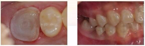 牙体预备制取26高嵌体工作模型