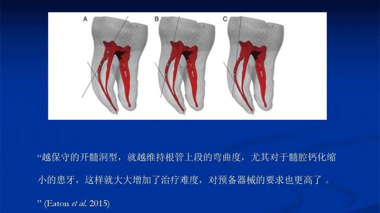 狭小开髓洞(CEC)和传统开髓洞(TEC)在碎屑堆积和抗折强度上并无统计学的区别