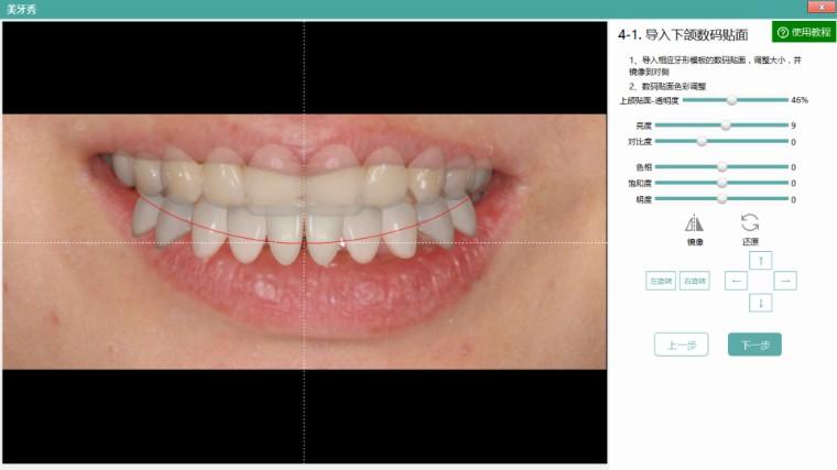 美牙秀请在第4步选择导入下颌贴面