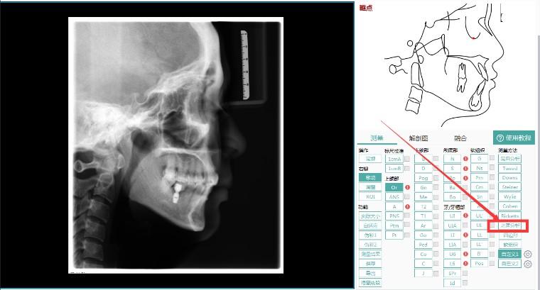 头影测量新增北医分析方法