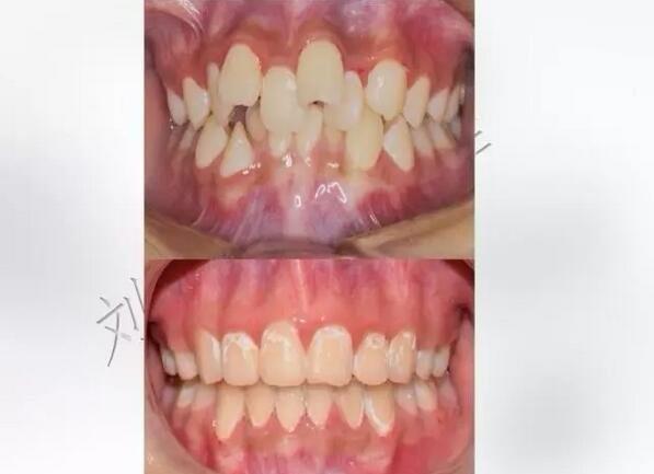 牙齿矫正后与没有矫正的对照图
