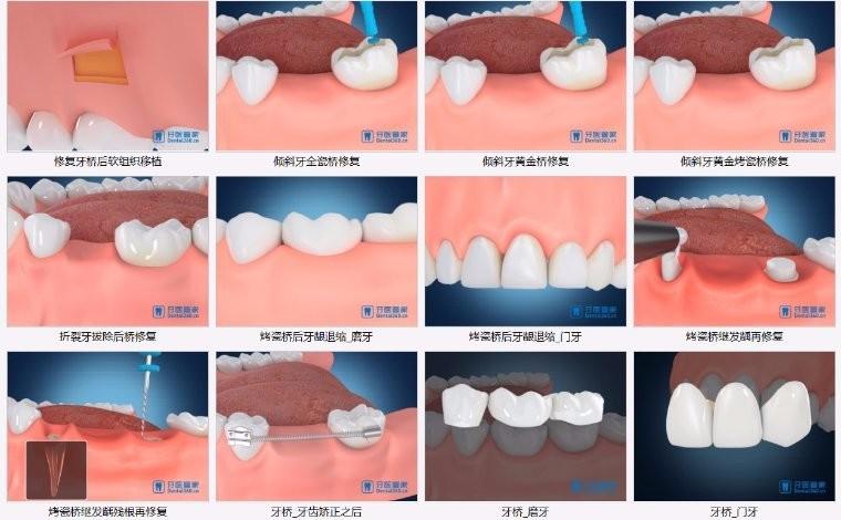 牙科最全241个高清医患沟通视频