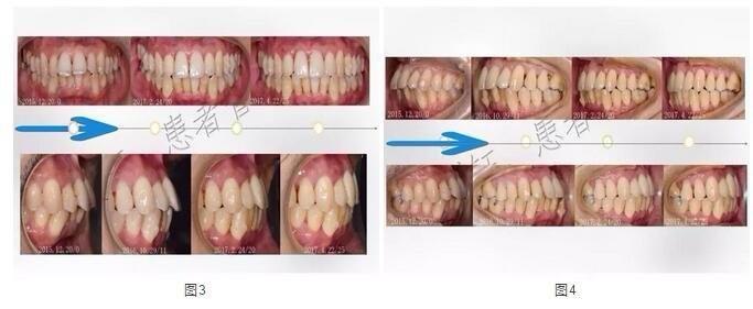 牙齿治疗前后对比