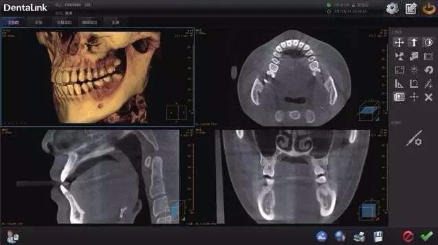CT、全景、头侧三大功能拍摄成像