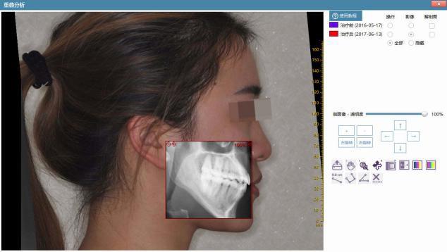 菲森CBCT拍摄的患者影像