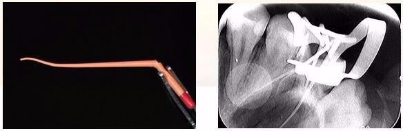 复诊,无不适,去除冠部暂封,试主牙胶尖,拍摄X-ray
