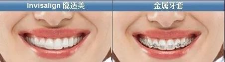 隐适牙套与金属牙套矫正对比