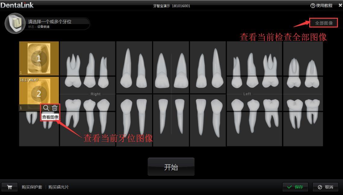 牙医管家口腔管理软件查看当前牙位图像