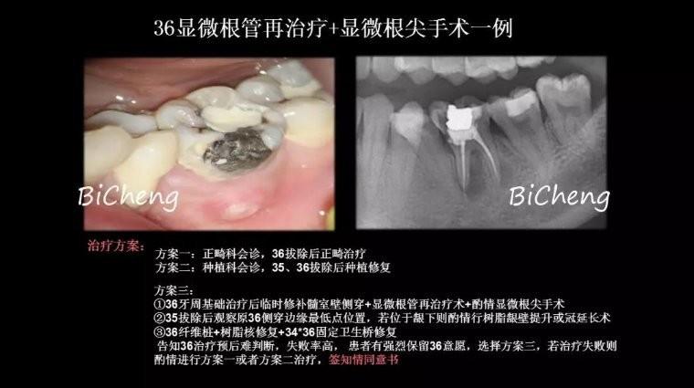 除了拔牙,疑难根管再治疗就没别的招了吗?