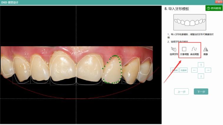 微笑设计新增牙形曲线调整功能