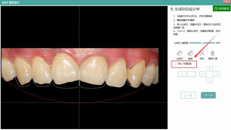 微笑设计、美牙秀新增下颌贴面功能