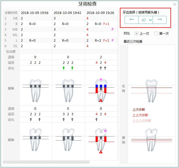 牙医管理免费口腔软件牙周检查每颗牙齿详细历史记录