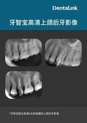 牙智宝拍摄的后牙X光片