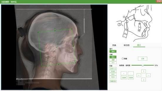 正畸头影测量软件