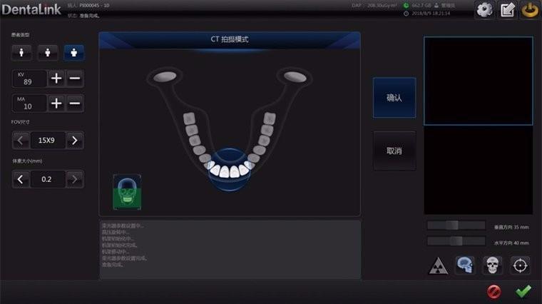 牙医管家CBCT软件人性化界面