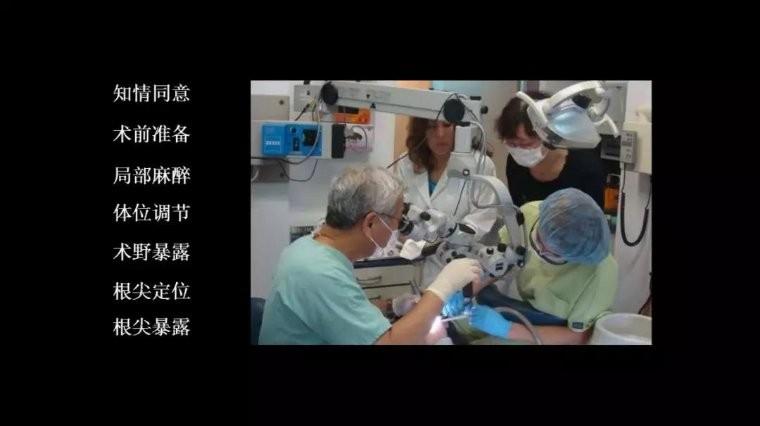 显微根尖手术流程