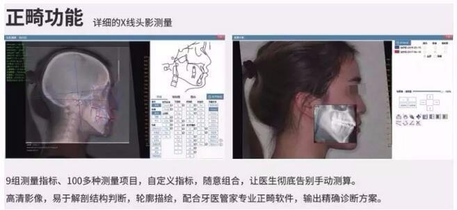 X线头影测量功能介绍