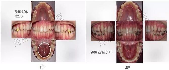 带牙套案例