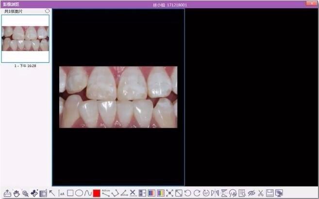 牙医管家微笑设计使用截图