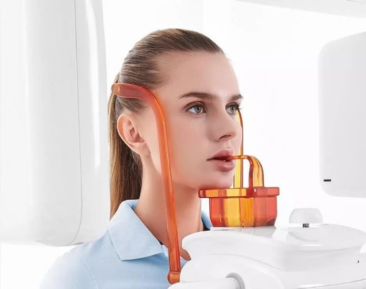 干货丨如何拍出完美的CT影像?skr的牙医全靠这5招!