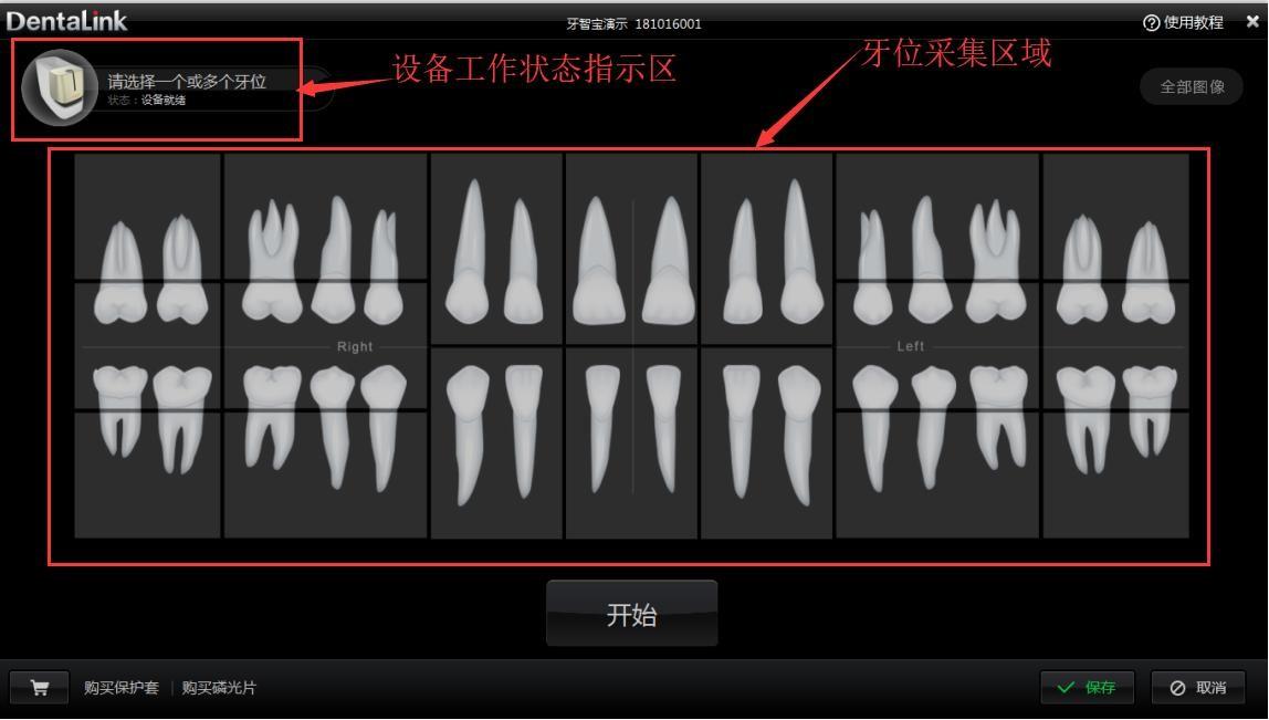 牙医管家口腔管理软件牙位采集区域控制后台介绍