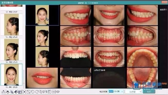 牙医管家美学分类功能