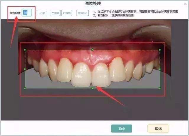 牙医管家口腔管理软件DSD微笑设计功能