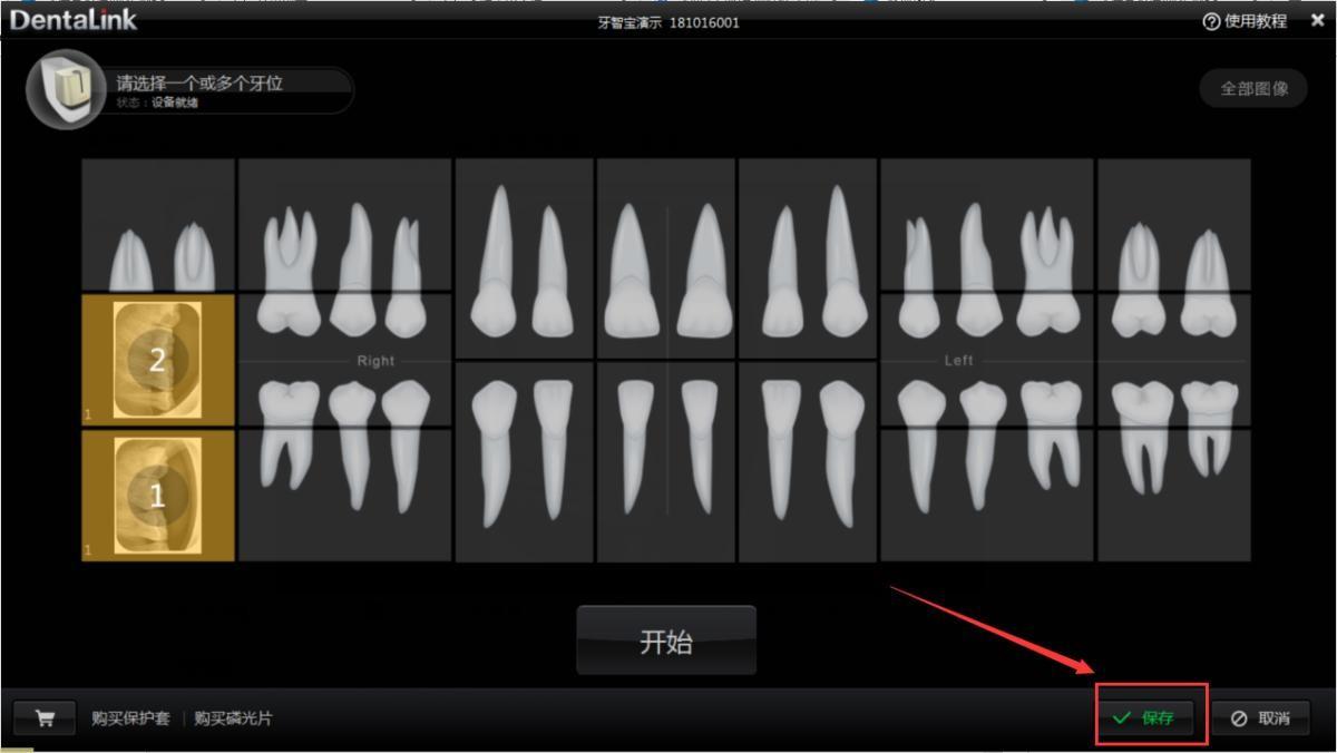 牙医管家口腔管理软件图像归档