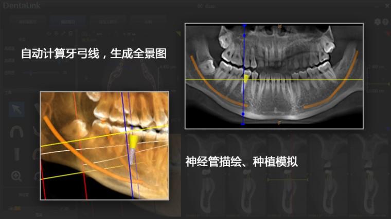 牙医管家口腔管理软件连锁版V4.5更新说明